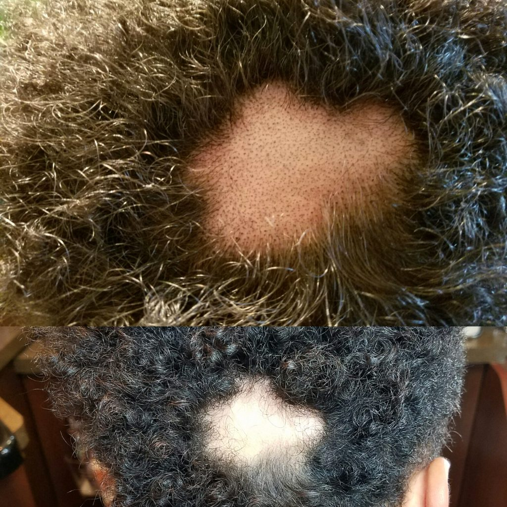 Scalp pigmentation by Transformations is life changing for both men and women