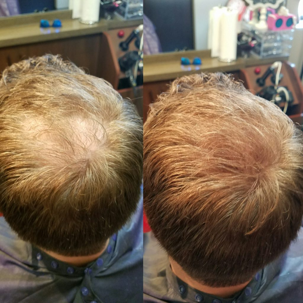 before and after image of mens hair replacement at Transformations Sylvania